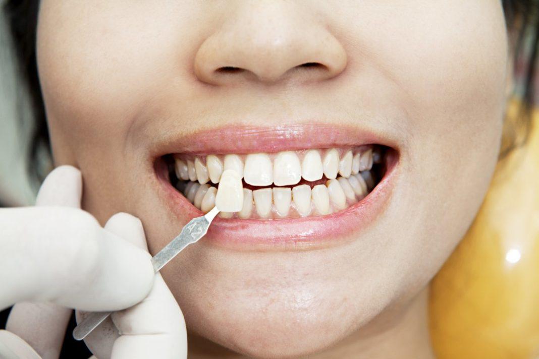 الأسنان في الحلم